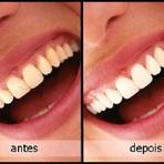 Receitas caseiras eficazes para clarear os dentes, super simples!