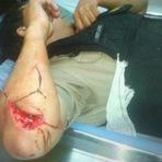 Blogueiro Repórter - Deficiente mental ataca sargento da PMMG com facão em Contagem - MG