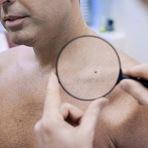 Curiosidades - Problemas de pele? 5 sinais para você ficar alerta