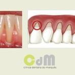Portugal -  Dentistas em Lisboa especializados em várias áreas da medicina dentária