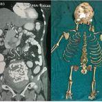 Opinião e Notícias - Mulher carrega feto morto por 36 anos alojado no corpo
