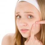 10 dicas para jovens se livrar de acnes e espinhas