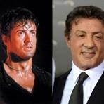 Cirurgia Plástica: 10 celebridades que já fizeram