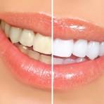 Tipos de Clareamento Dental e dicas especiais para manter o resultado