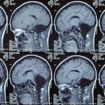 Mulher de 24 anos descobre que nasceu sem cerebelo