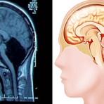 Ciência - Médicos descobrem que mulher vive sem uma parte do cérebro