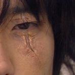 Contos e crônicas - Cicatriz no Rosto!