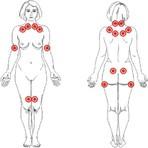 Clínica Vertebrata ensina o que você deve saber sobre fibromialgia
