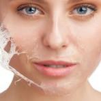 Peeling amazônico – Tratamento ideal para sua pele