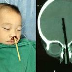 Menino de 2 anos enfia palitinho chinês no nariz e atinge o cérebro