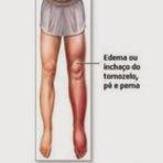 Saúde - Retenção de líquidos causas e sintomas