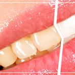 Dentes amarelados? 5 hábitos alimentares que contribuem para isso