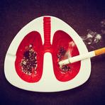 Saúde - Bronquite É Contagiosa?