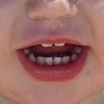 O nascimento dos dentes