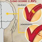 Derrame Cerebral ou AVC - Bom Corpo Bom