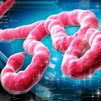Saiba mais sobre o vírus Ebola