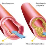 Saúde - Afinal de Contas, o que é dislipidemia?