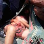Violência - Mãe degola filha de 4 anos e tenta suicídio