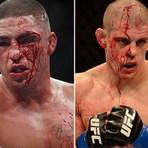 Esportes - JOE LAUZON FORA DO UFC 180