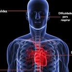 Sintomas de infarto (para Homens e Mulheres)