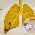 Jornal ciencia:Droga elimina câncer de pulmão em ratos; testes serão feitos em humanos