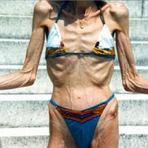 Saúde - Anorexia Nervosa