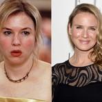 Mulher - Conheça as celebridades que ficaram feias após as plásticas