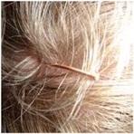 Saúde - Acupuntura e crescimento do cabelo