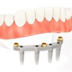 Motivos para colocar uma prótese dentária fixa