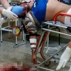 Homem baleado em Paiçandu é deixado na porta do HU e morre durante cirurgia em Maringá