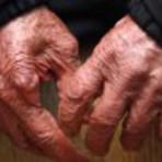 Campanha contra o câncer de pele oferece atendimento dermatológico gratuito