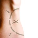 Quantos quilos dá para perder com uma lipoaspiração?