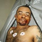 Morre, crivado de Balas na Vila Padre Inácio, o ex-presidiário Durinho.
