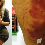 Andressa Urach usou 'mistura perigosa', omitiu do seu médico e se arrependeu, afirma cirurgião