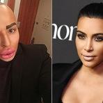 Homem gasta R$ 421 mil para ficar parecido com Kim Kardashian