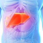 Como evitar ou acabar com a gordura no fígado