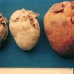 É possível recuperar as lesões cardíacas da doença de Chagas, diz estudo