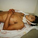 Jovem esfaqueado na Zona rural de Caruaru morre no Hospital de Toritama
