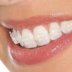 Saúde - Extrair dentes sem necessidade pode causar ronco e miopia