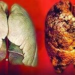 Saúde - Câncer do pulmão um problema de saúde em crescimento