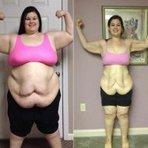 Auto-ajuda - perdeu 95 quilos consegue plásticas de graça após campanha (Jovem)