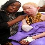 Tanzânia: Criminosos estão arrancando membros de albinos acreditando que ficarão ricos