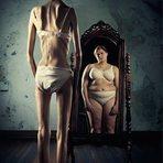Anorexia: Causas, sintomas e tratamento