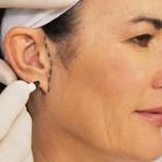 Otoplastia: a cirurgia plástica que corrige orelhas de abano