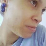 Meu tratamento para acne