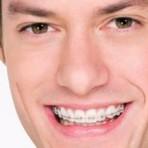 Dentista pra quê? Meus dentes já são brancos