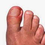 Perigos das unhas encravadas
