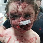 Garota é atacada por cão e leva 240 pontos no rosto