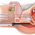 Saúde - A Criocirurgia para Câncer de Próstata