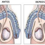 Vasectomia Ligada ao Risco de Câncer de Próstata Agressivo